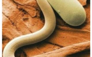Гемморой и глисты, есть ли связь между ними?