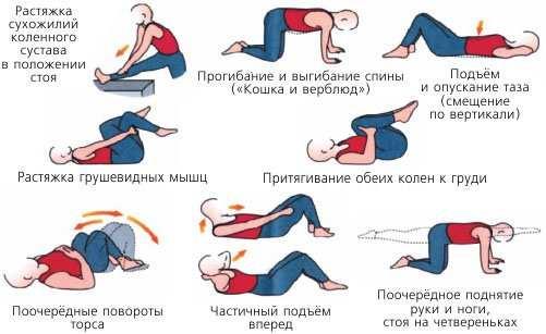 Физкультура при геморрое