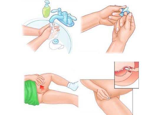 Крем от геморроидальных шишек