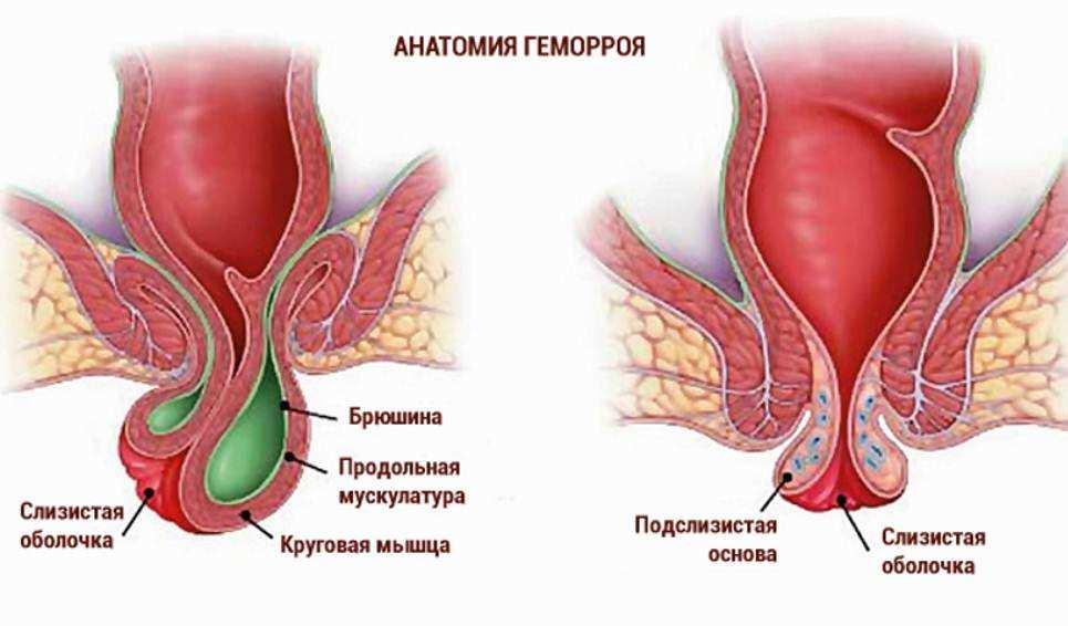 Зарядка для беременных с геморроем