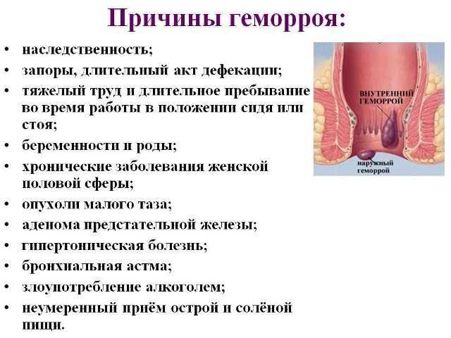 геморрой у женщин свечи