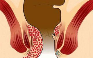 Геморрой 4 степени, симптомы, лечение и признаки заболевания