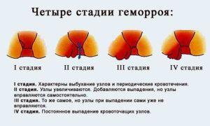 Симптомы геморроя у мужчин и его лечение