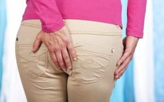 Правильное лечение геморроя в домашних условиях у женщин