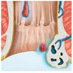 Геморрой: причины, патогенез и симптомы